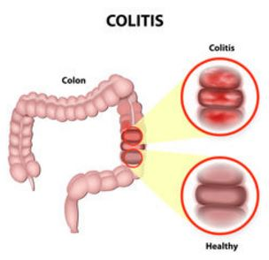 downriver gastroenterology ulcerative colitis