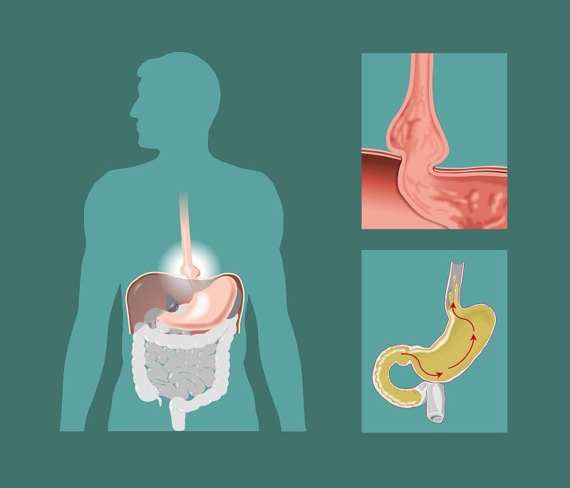 Downriver Gastroenterology Hiatal Hernia