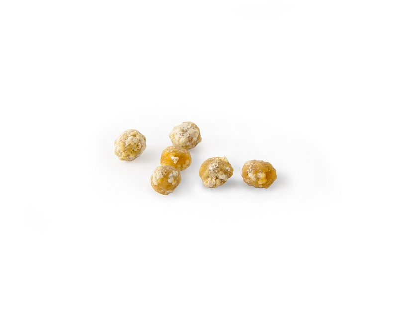 Downriver Gastroenterology Gallstones