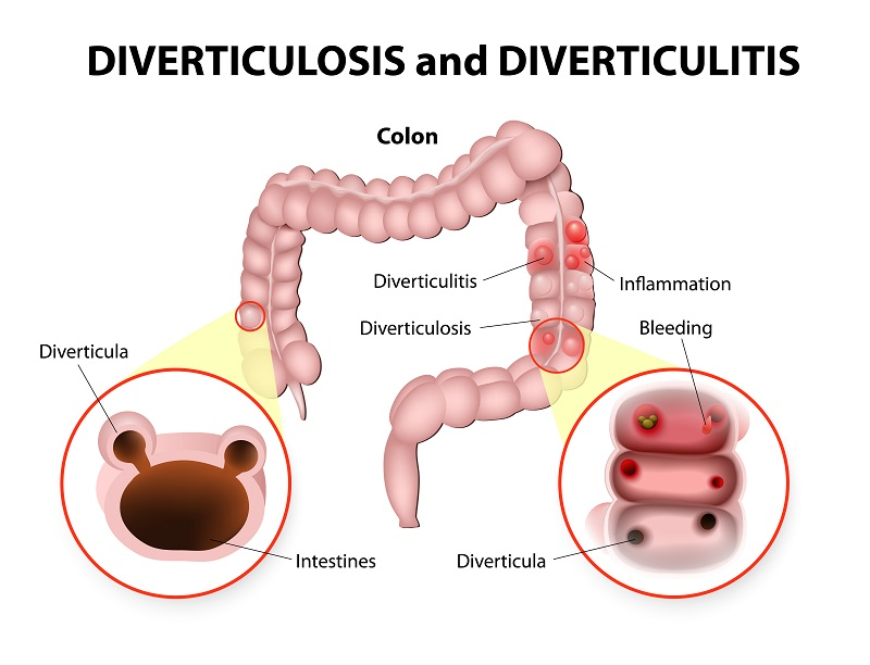 Downriver Gastroenterology Diverticulosis and Diverticulitis