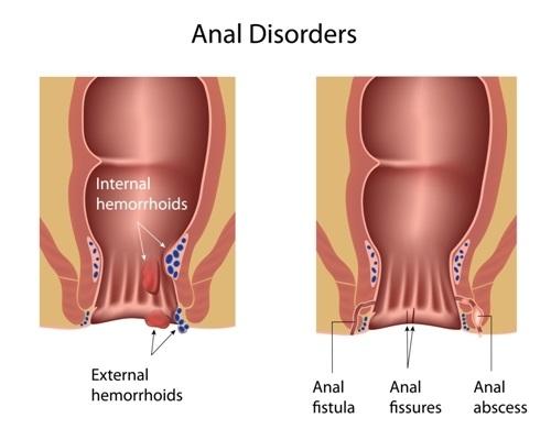 Downriver Gastroenterology Anal Rectal Abscess