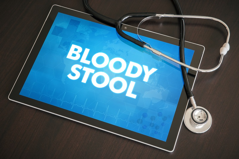 Downriver Gastroenterology 5 Common Causes of Bloody Stool